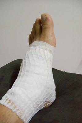 我又腫又痛的足踝! :_(